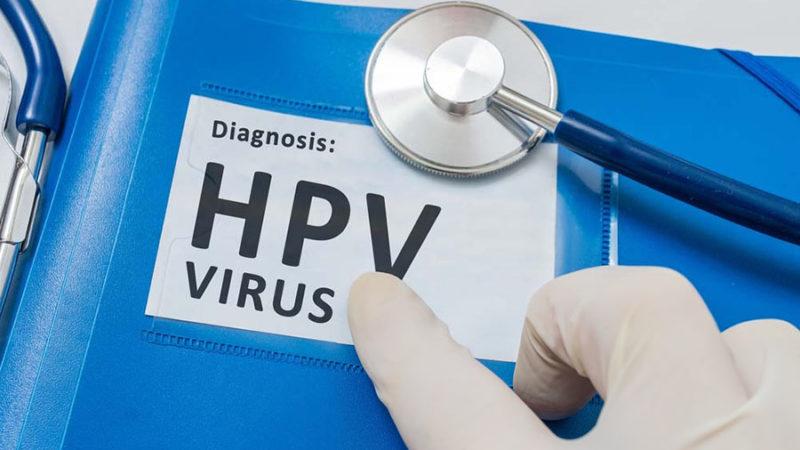 odam papillomavirusi (kondiloma qo'zg'atuvchisi) tashxisi